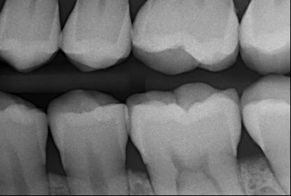 2D Röntgen
